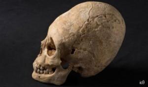 elongated-skull-france
