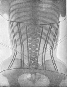 461px-Padiographie_du_corsetLigne(dos)