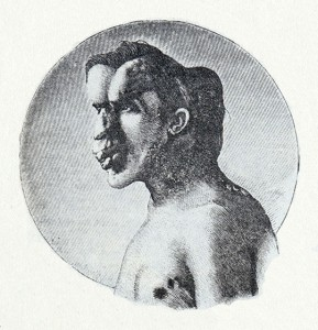 Image of Joseph Merrick published in the British Medical Journal in 1886